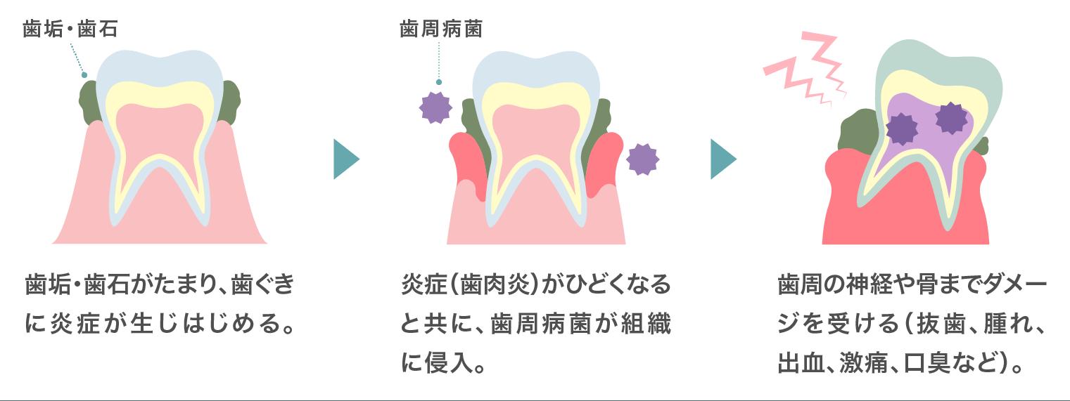 歯周病進行の説明図